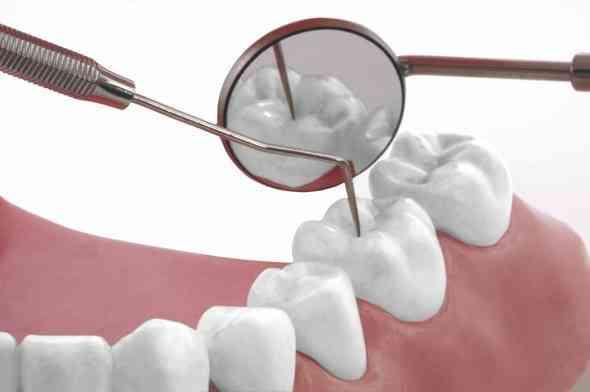 dental fillingsnew
