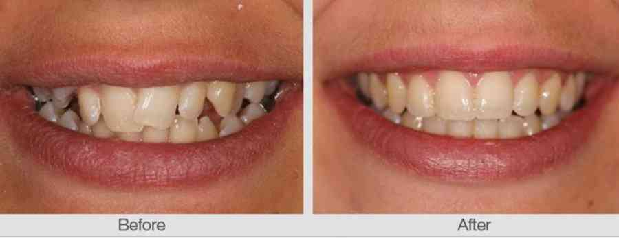 How do crooked teeth affect your dental health?