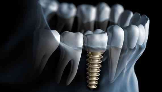 What are the benefits of having dental implants?