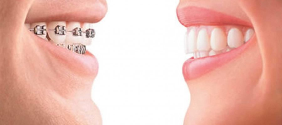 How braces work?