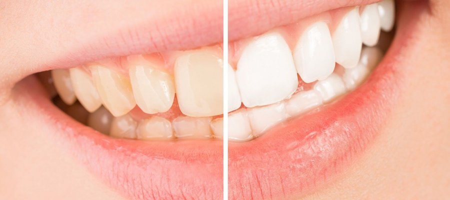 What can I do about the discolouration of my teeth ?